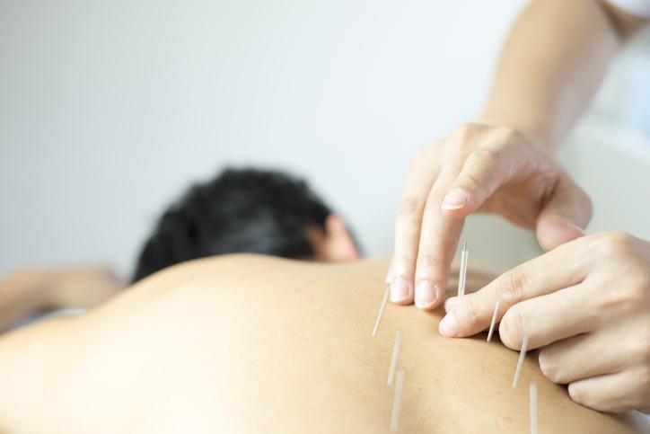 acupuncture-kumeu-physio